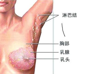 预防乳腺癌
